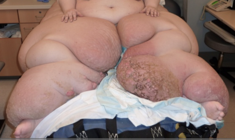 Type-2-Lymphedema